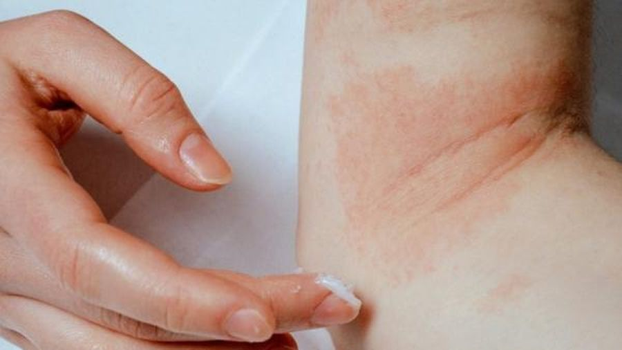 Cách giảm ngứa khi bị eczema