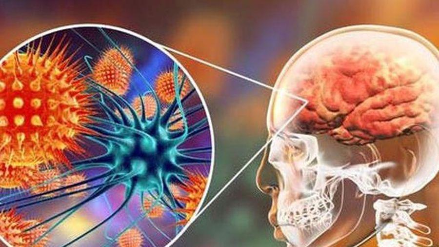 Cảnh báo virus làm phù não có nguy cơ gây chết người cao gấp 75 lần COVID-19