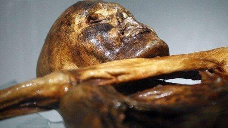 Người băng Otzi chết do lây bệnh từ bọ chét?