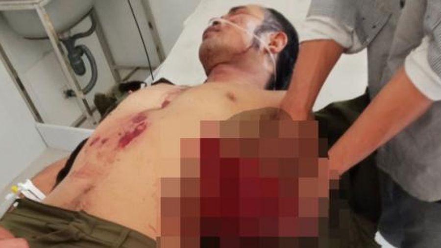 Lâm Đồng: 7 người bị thương vì mìn tự chế phát nổ