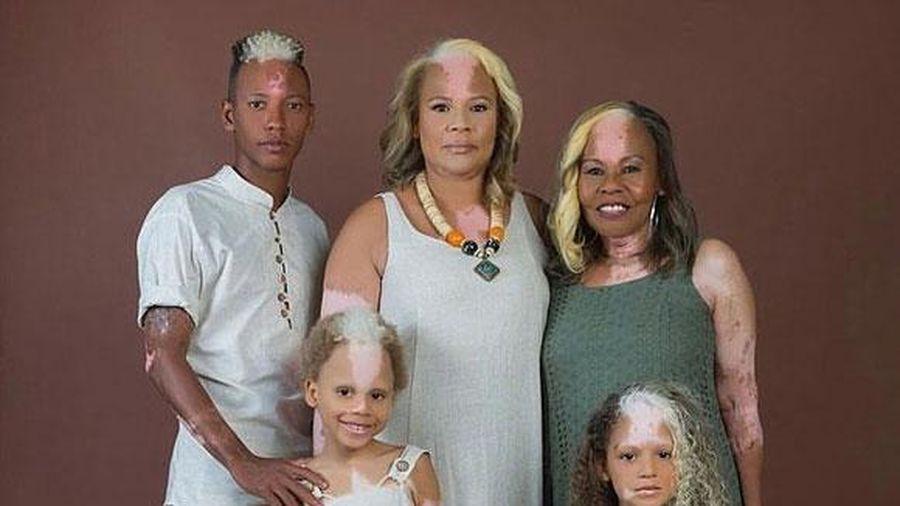 Gia đình ba thế hệ cùng có mảng da tóc màu lạ