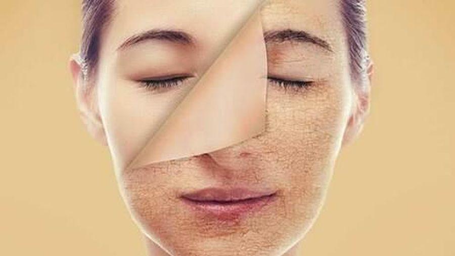 Lão hóa da và các vấn đề thường gặp
