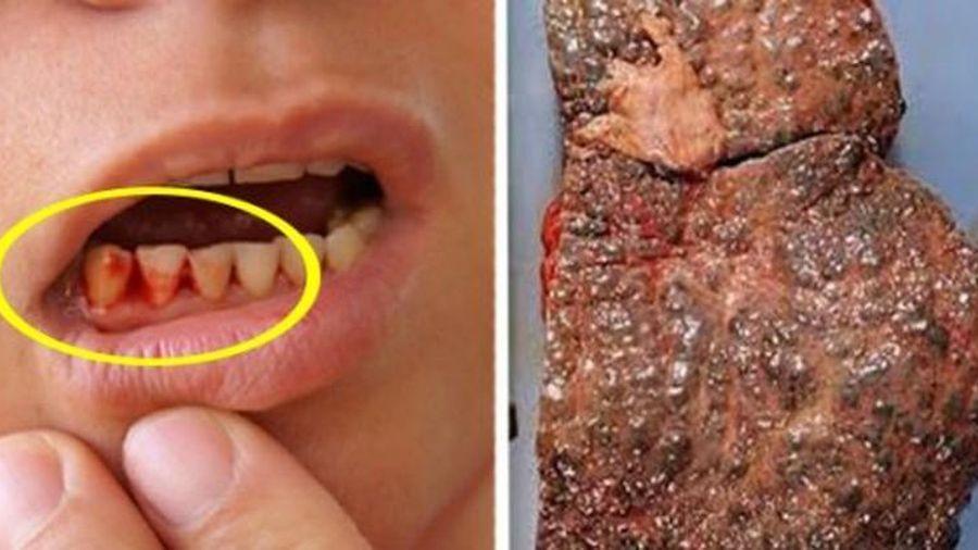4 dấu hiệu trên miệng cảnh báo gan bị tổn thương nghiêm trọng