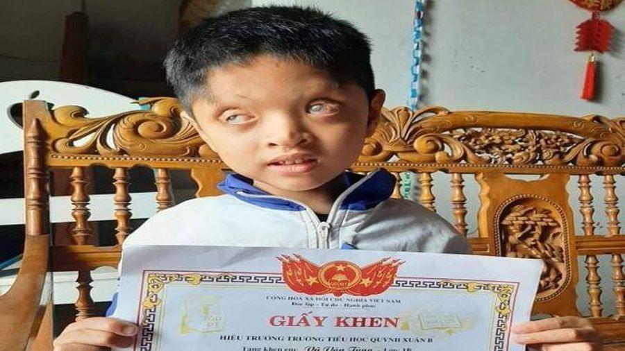 Mẹ nghèo cầu xin giữ con mắt còn lại cho con trai 7 tuổi có đôi mắt toét, chỉ nhìn thấy 2% ánh sáng