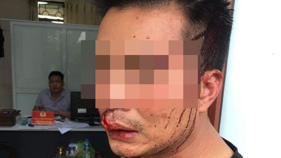 Bảo vệ Cty Thép Hòa Phát đánh lái xe phải nhập viện