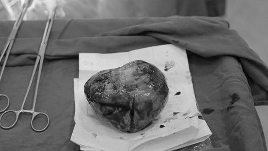 Ca 'mổ kép' tách khối u buồng trứng 20 cm và em bé thành công