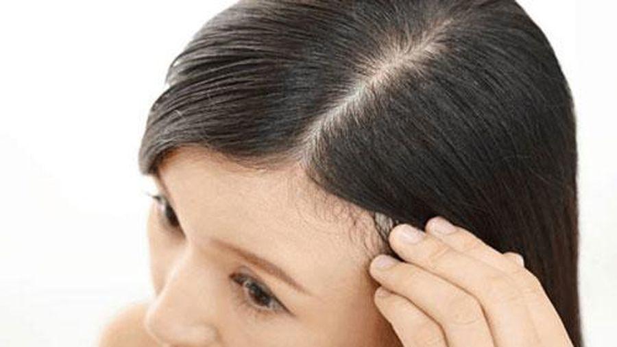Xử lý tóc bết dính đơn giản hơn bạn nghĩ