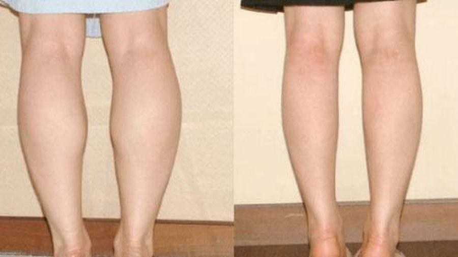 Phương pháp thu nhỏ bắp chân đơn giản nhưng không nhiều người biết