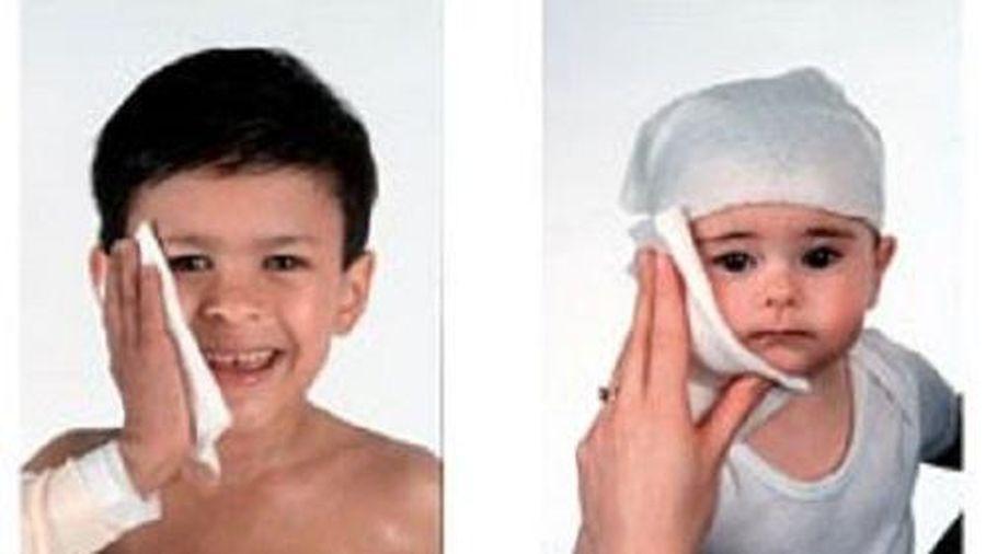 Hướng dẫn quấn băng ướt trong điều trị cho trẻ bị eczema
