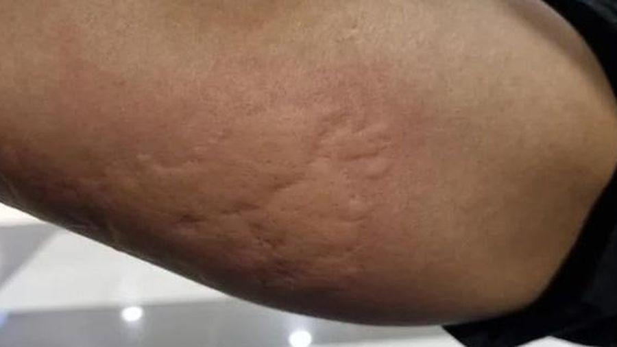 Nằm ghế massage trong trung tâm thương mại, nam thanh niên nhận ngay cánh tay 'biến dạng'' do rệp tấn công