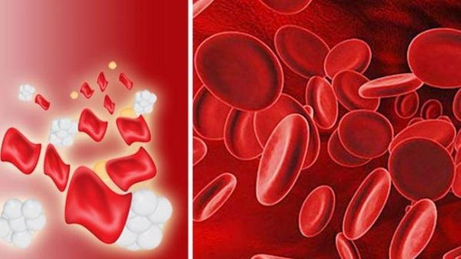 Triệu chứng bệnh Thalassemia