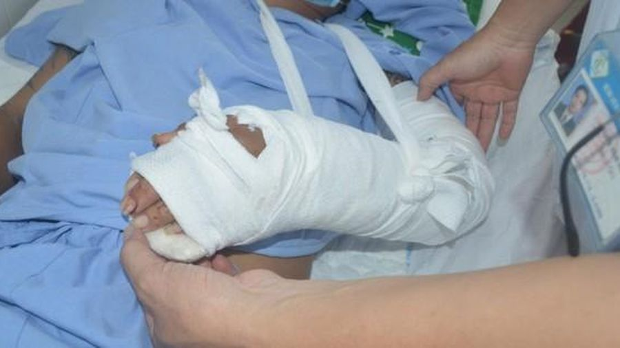 Phẫu thuật thành công bàn tay bị đứt lìa
