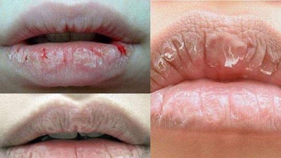 Chữa môi khô không khó như bạn nghĩ đâu nhé