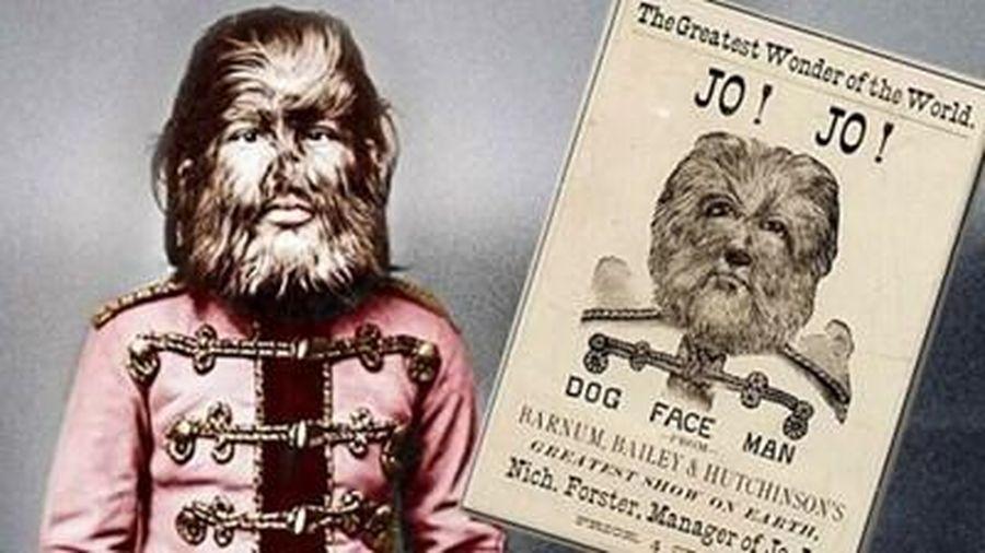 Chuyện về cậu bé 'người sói' Nga từng chinh phục khắp nước Mỹ