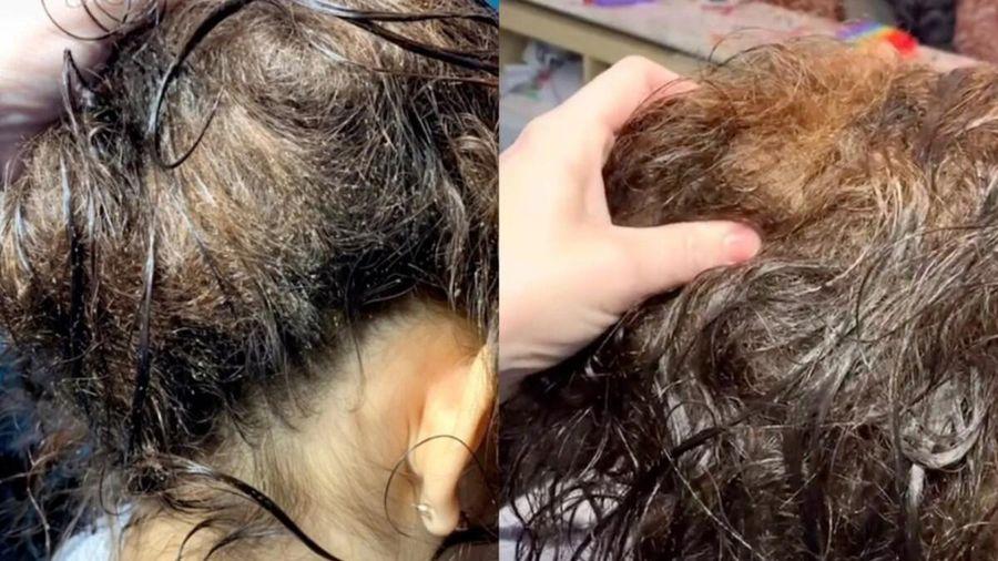 Người phụ nữ bị chấy làm tổ trên đầu đến tiệm tóc, cách xử lí của cô thợ khiến nhiều người trầm trồ