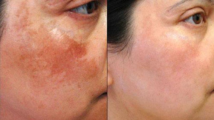 4 điều cần ghi nhớ để trị sạch nám da