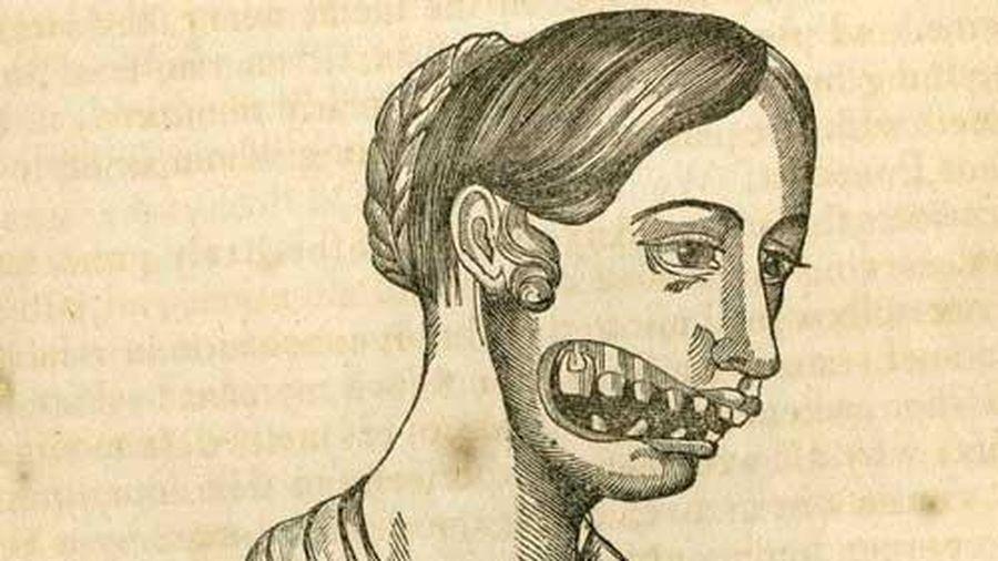 Những cô gái 'hàm phossy' – Di chứng khủng khiếp từ phốt pho trắng