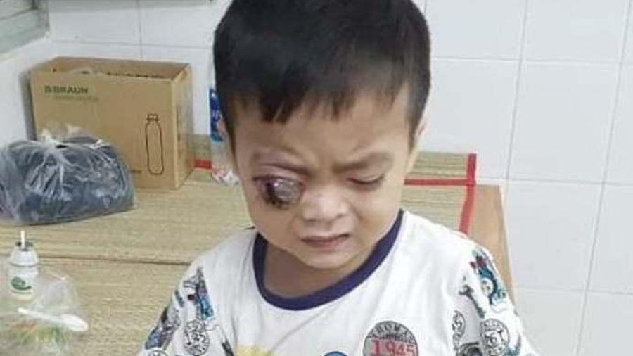 Giúp bé trai 3 tuổi bị ung thư võng mạc