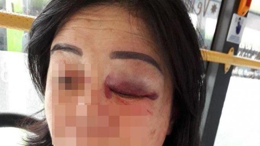 Công an vào cuộc điều tra vụ tiếp viên xe buýt bị đánh